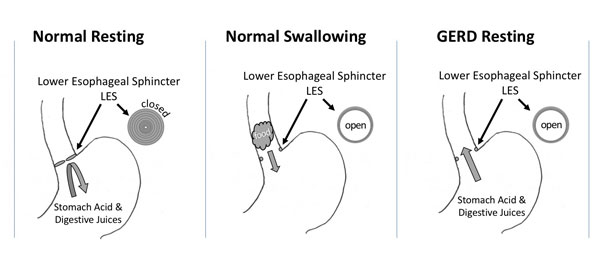 Illustration of the Lower Esophageal Sphincter
